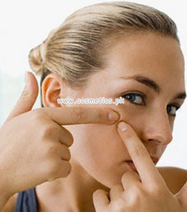 What Causes Of Having Pimples
