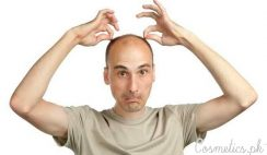 Top 5 Home Remedies For Baldness