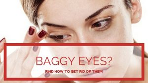 How To Get Rid of Baggy Eyes: 3 Working Methods