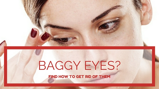 How To Get Rid Of Baggy Eyes